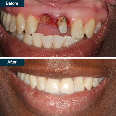 Before After Dental Implants Dentist Yonkers NY