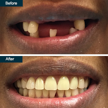 Before After Flexible Partial Dentures Dentist Yonkers Westchester NY
