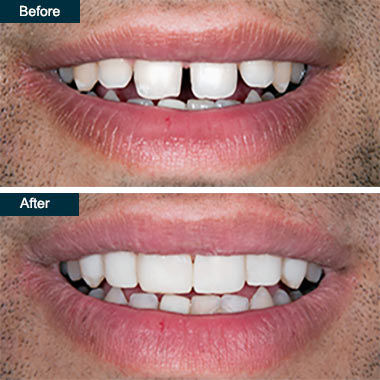 Before After Cosmetic Dental Bonding (2) Yonkers NY