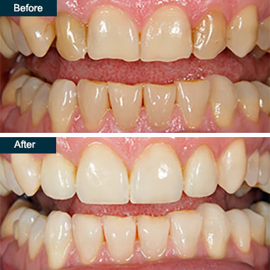 Before After Cosmetic Dental Bonding (1) Yonkers NY