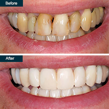 Before After Dental Deep Teeth Cleaning Yonkers NY