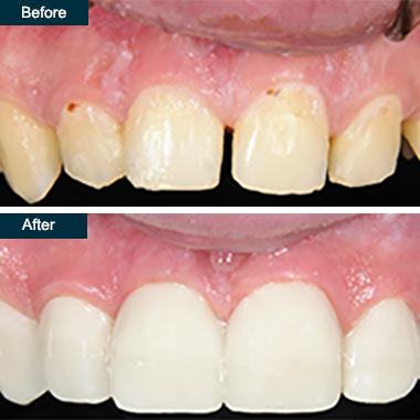 Before After Dental Smile Makeover Yonkers NY