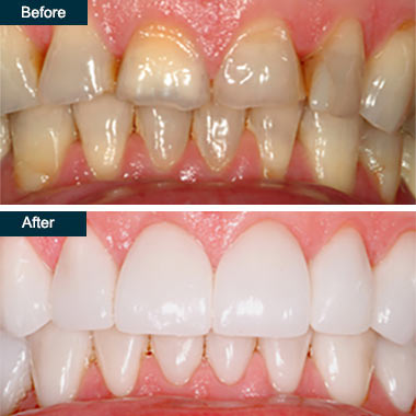 Before & After Porcelain Crowns