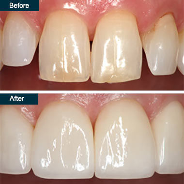 Before After Press On Dental Veneers (2) Yonkers NYC