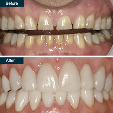 Before After Press On Dental Veneers Yonkers NY