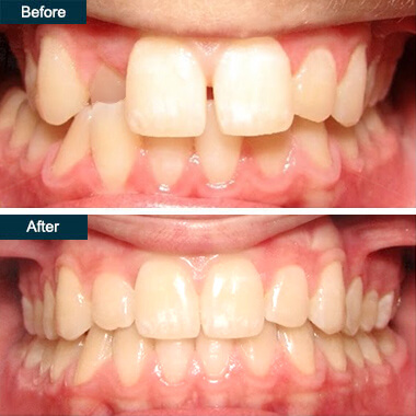 Before After Dental Yonkers Invisalign