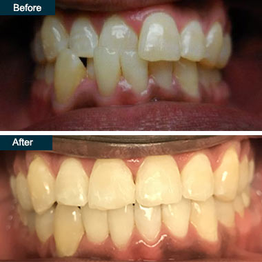 Before & After Invisalign (Top Yonkers Invisalign Dentists)