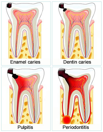 Root Canal Dentist Yonkers | Top Rated Root Canal Specialist in Yonkers