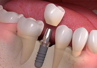 Single Tooth Implant Yonkers NY