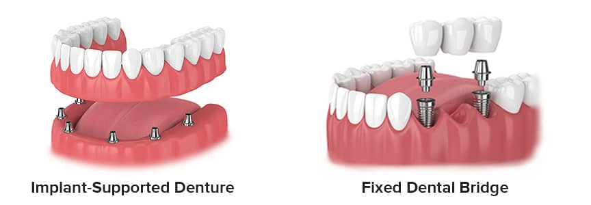 Implant-Supported Denture and Fixed Dental Bridge